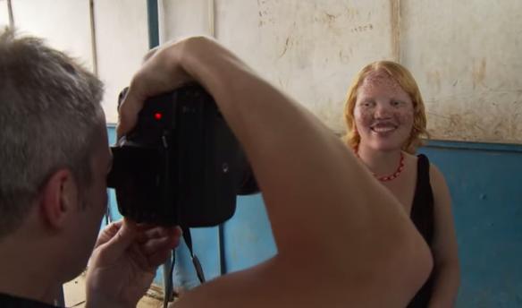 jm-allcreated-photographer-beauty-in-disabilities-1